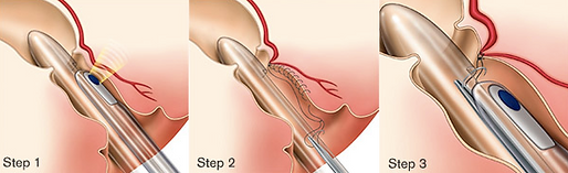 ransanal hemorrhoidal dearterialization (THD) is a minimally invasive surgical procedure