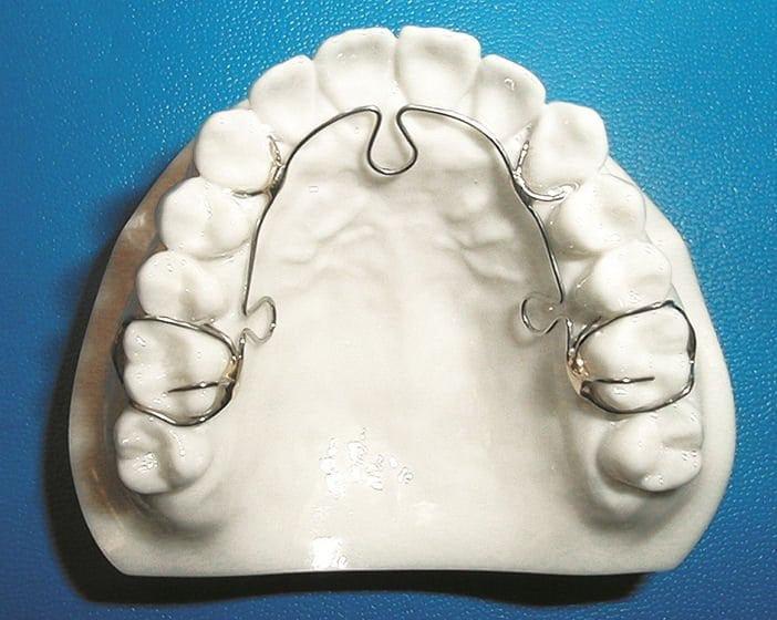 ALF Orthodontics