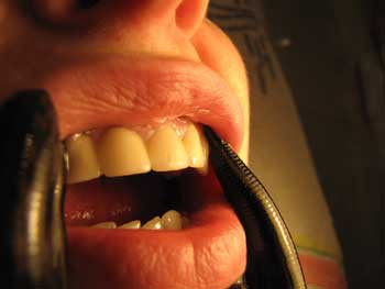 paradonoza hirudoterapia