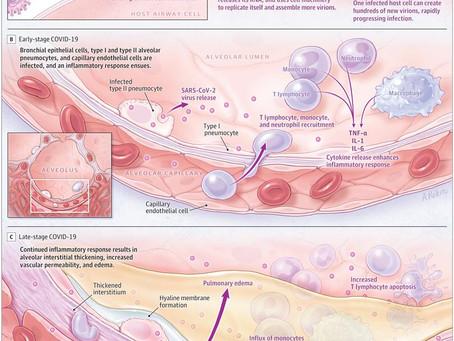 Pathophysiology, Transmission, Diagnosis, and Treatment of Coronavirus Disease 2019 (COVID-19)