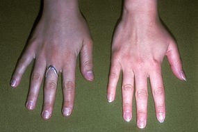1800ss_medical_images_rm_argyria_hand_co