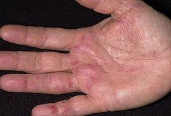 dermnet_rf_photo_of_eczema_on_hand.jpg