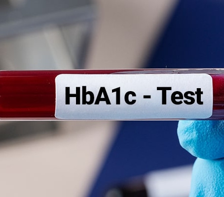 Why HbA1C testing is Important in diagnosing diabetes