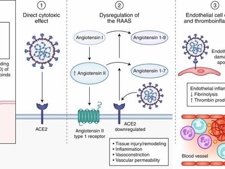 Extrapulmonary manifestations of COVID-19