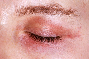 1800ss_medical_images_rm_cutaneous_amylo