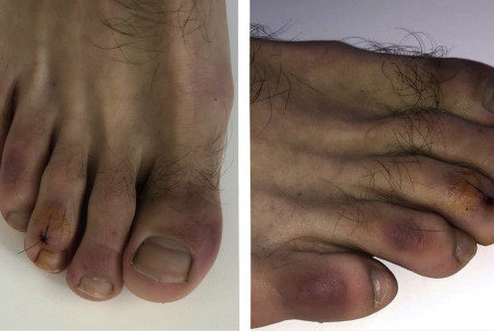 Coronavirus (COVID-19) infection–induced chilblains: A case report with histopathologic findings