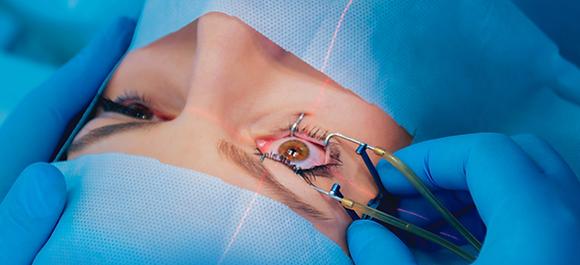 Eye surgery (आँखों की सर्जरी )