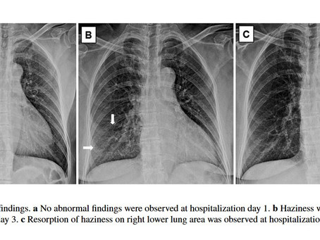 COVID-19 complicated with pneumonia in a patient with rheumatoid arthritis: Case Study Report