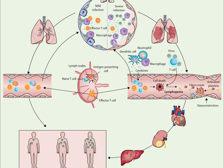 SARS-CoV-2 and viral sepsis: observations and hypotheses