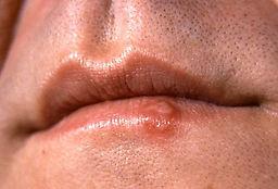 cdc_cold_sore_closeup_lips.jpg