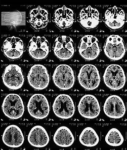 ct-scan-brain.jpg