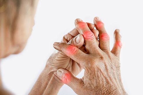 Asian woman hand suffering from joint pa