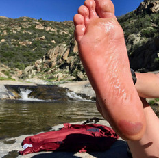 Day 2: Blood Blisters On Both Heels