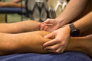 calf dry needling.jpg
