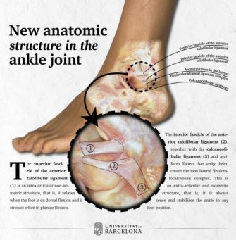 New ligament described explaining chronic pain after ankle injuries