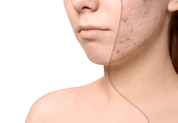 acne-scar-treatment-before-after-972x675.png