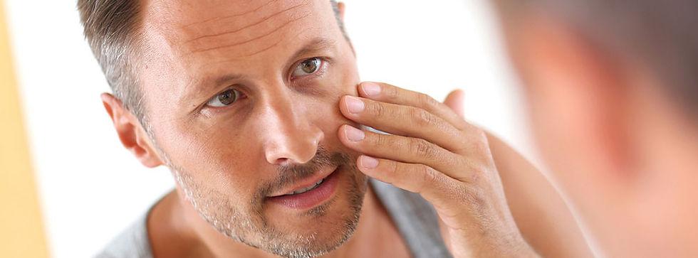 middle-aged-man-dry-skin.jpg