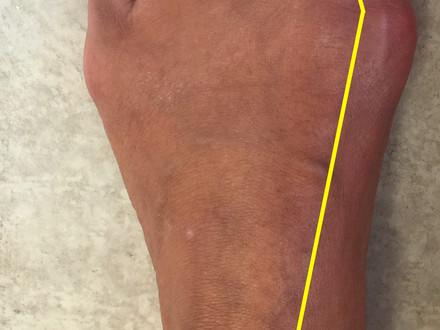 Chirurgie du pied sans douleur: mythe ou réalité?