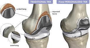 Prothèses de genou sur mesure