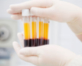 blood-plasma-test-tube-ccl.jpg