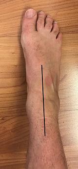 cheville incision.jpg