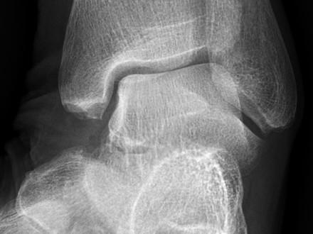 La prothèse de cheville