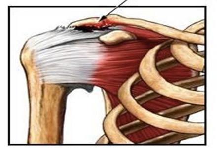Douleurs de l'épaule et periarthrite; que faire ?