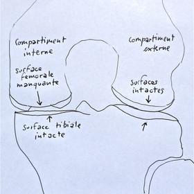 IRM schema.JPG