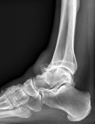 cheville arthrose2.jpg