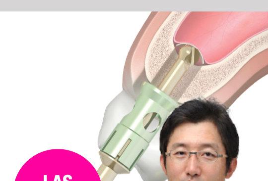Predictable Success of Sinus Surgery using Neobiotech Sinus Kits : Safe, Simple,