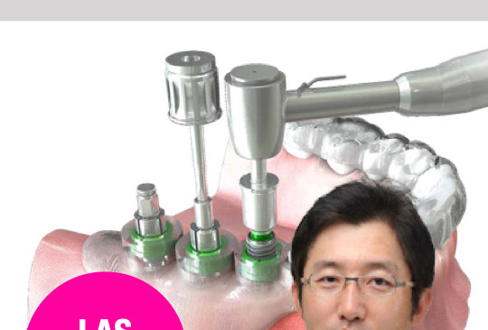 Simple Approach for Implant Guided Surgery and Immediate Extraction & Placement