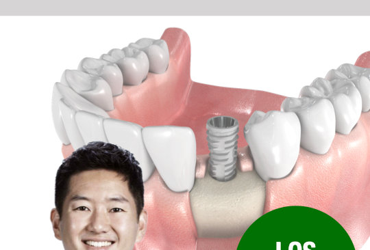 Getting Started: Safe and Predictable Dental Implant Surgeries for Beginners