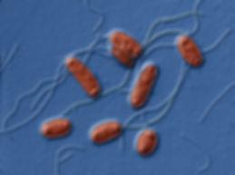 legionella-pneumophila-tem-eye-of-scienc