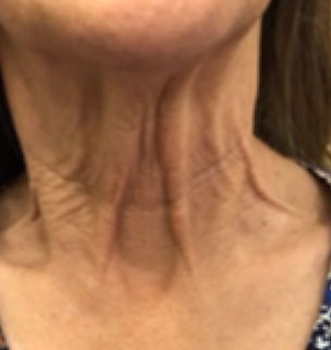 Neck before.jpg