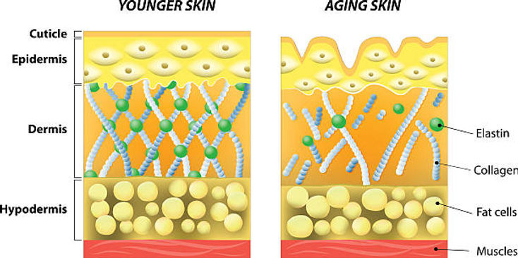 Skin dermis aging process.jpg