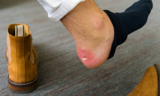 How to manage and avoid gross foot blisters