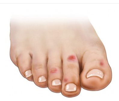 7 Ways to Avoid Chilblains
