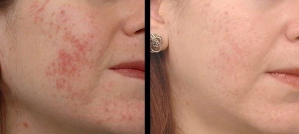 acne-on-the-face-before-after.jpg