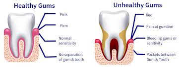 To provide a good foundation to any dental treatments, first the gum tissues must be evaluated, cons