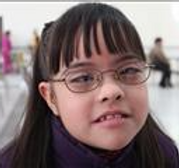 Cross-Eyed Girl with glasses