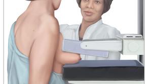 Confirmed: Breast Screenings Cause More Harm Than Good