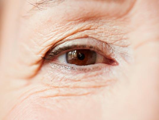 plastica-ocular-dra-melissa-krindges-2.j