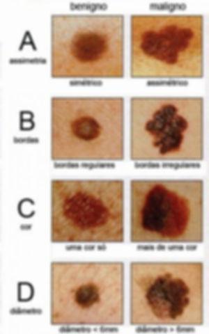 1_como_identificar_cancer_de_pele_precoc