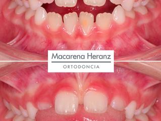 Una revisión de Ortodoncia antes de los 6 años, permitirá detectar problemas de los dientes y los hu