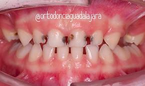 Niños De 0 A 6 Años Los Grandes Olvidados Clinica Dental