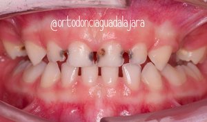 Paciente de 4 con múltiples caries y molares perdidos por caries.