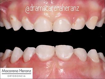 Dentista Infantil Guadalajara.png