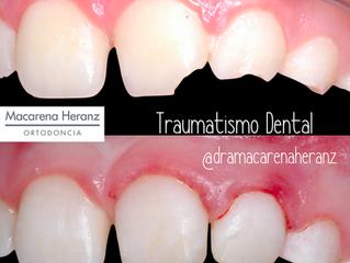 Traumatismos Dentales en la Infancia