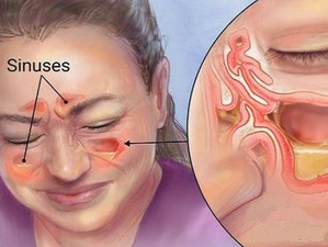 Sinus Problems Solution Guide