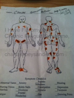 My first fibromyalgmap after following the Guifenesin Protocol for five years. a